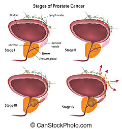 Stages of prostate cancer, eps10