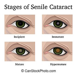 Stages of Senile Cataracts - Illustration of the four stages...