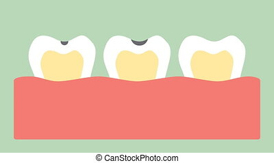 stages of tooth decay or dental caries - teeth cartoon...