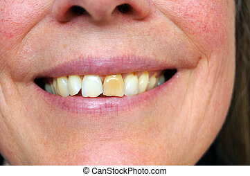 Stained tooth - Person smiling with a stained yellow tooth...