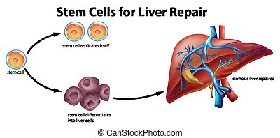 Stem cells for liver repair