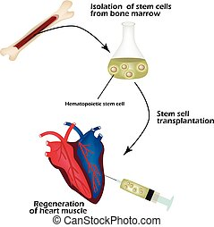 Stem cells from bone marrow is used to regenerate the cardiac muscle. Infographics. Vector illustration