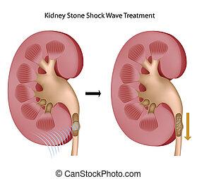 stenar, behandling, njure