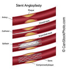 Stent angioplasty, eps10