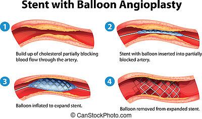 Stent angioplasty procedure - Illustration of stent ...
