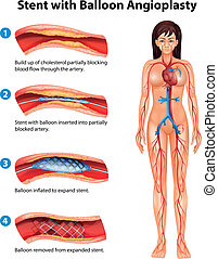 Stent angioplasty procedure - Illustration of stent...