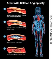 Stent angioplasty procedure on a black background