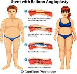 stent, balloon, angioplasty