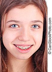 steunen, meisje, jonge, tiener, teeth, mooi, witte