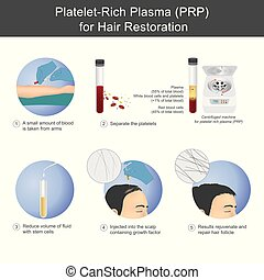 stimulation, plasma, service, plaquette, processus, recipients, cheveux, injecté, croissance, par, sanguine, riche, séparer, utilisation, être, scalp., sur