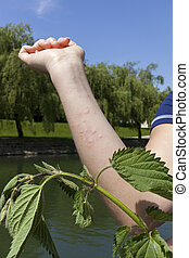 Stinging nettle allergic reaction - Acute allergic reaction...