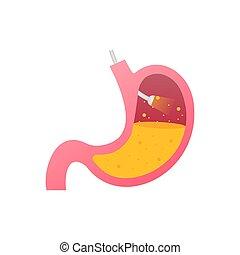 Stomach endoscopy. Endoscope in stomach through esophagus. Vector stock illustration