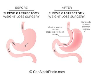 Stomach Staple Bariatric Surgery Resulting in 1/4 of the...
