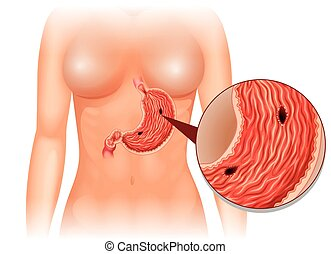 Stomach Ulcer diagram in woman illustration