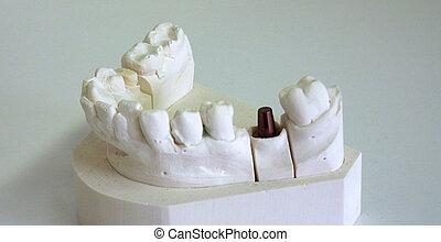 stomatologiczny, wpajać, wspornik