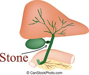 Stone bile duct. Gallbladder, duodenum, pancreas, bile ducts. Vector illustration on isolated background.