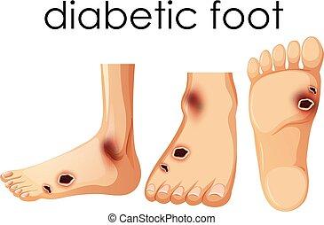 stopa, ludzki, diabetyk