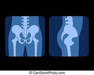 stråle, x, skelett