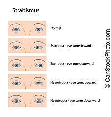 Strabismus, eps10 - Classification of crossed eyes