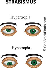 Strabismus. Hypertropia. Hypotropia. Infographics. Vector illustration on isolated background