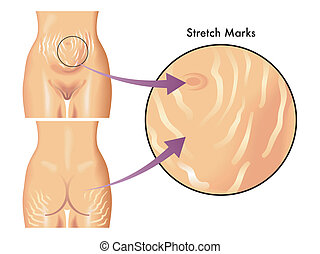 stretch marks - medical illustration of symptoms of stretch...