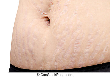 stretchmarks on woman belly