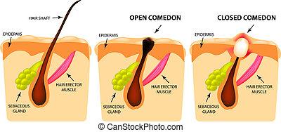 structure., 閉じられた, acne., comedones, 隔離された, イラスト, infographics., ベクトル, 背景, 皮膚, 開いた, タイプ