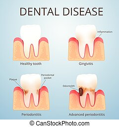 the development of dental disease, plaque and calculus