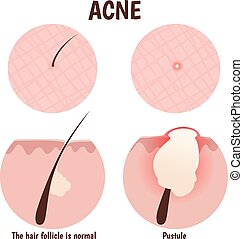structure of the hair follicle