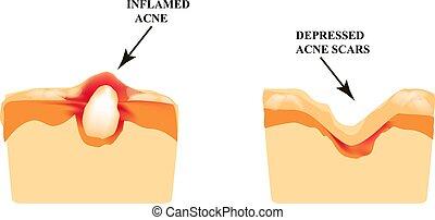 struktur, pimple., scar., infographics., skin., illustration...