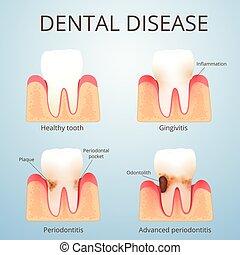 struttura, denti umani