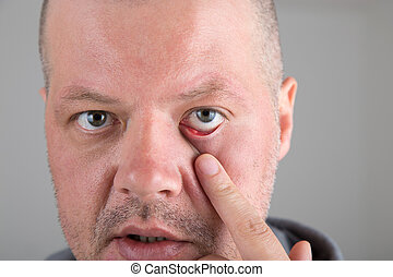 Stye in the eye - Male patient with stye in the eye at the...