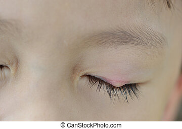 Stye - Left upper eyelid small stye in young asian boy close...
