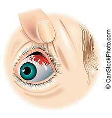 subconjunctival hemorrhage - medical illustration of the...