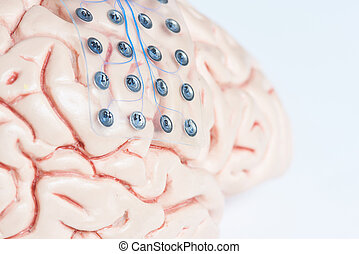 Subdural grid electrode for brain waves recording on the brain model