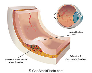 Subretinal neovascularization - Illustration of the...