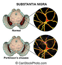 Substantia nigra in norm and in Parkinson's disease, 3D...
