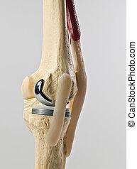 substituição, joelho, human