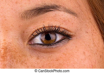 Close up of woman eye and surrounding skin showing sun damage, commonly known as freckles.