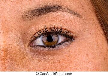 Sun Damaged Skin - Close up of woman eye and surrounding ...