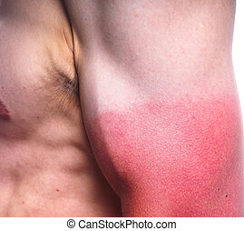 Sunburn biceps of a male - closeup of male with heavy...