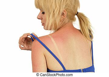 Sunburn - Blond female with a bad sunburn on her back.