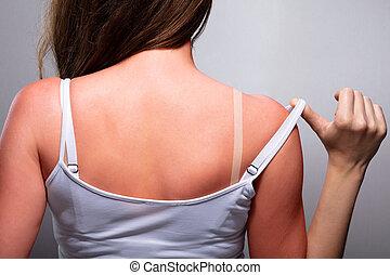 sunburn, mulher