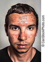 Sunburn skin on male face - Sunburn skin peeling on male...