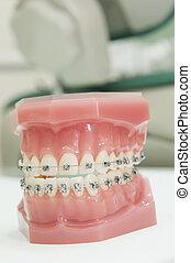 superior, más bajo, mandíbula, dental, modelo, fierros