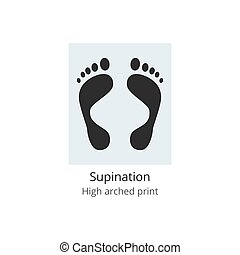 Supination - high arched print of human foot with medical ...