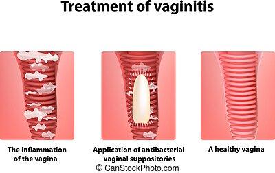 suppositories., vaginitis, infographics., ilustración, vagina., aislado, plano de fondo, tratamiento, vector, inflamación