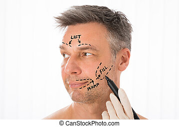 Surgeon Drawing Correction Lines On Man Face