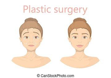 surgery., figure, plastique
