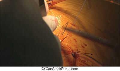 surgery, sterile operating 6 - surgery, sterile operating